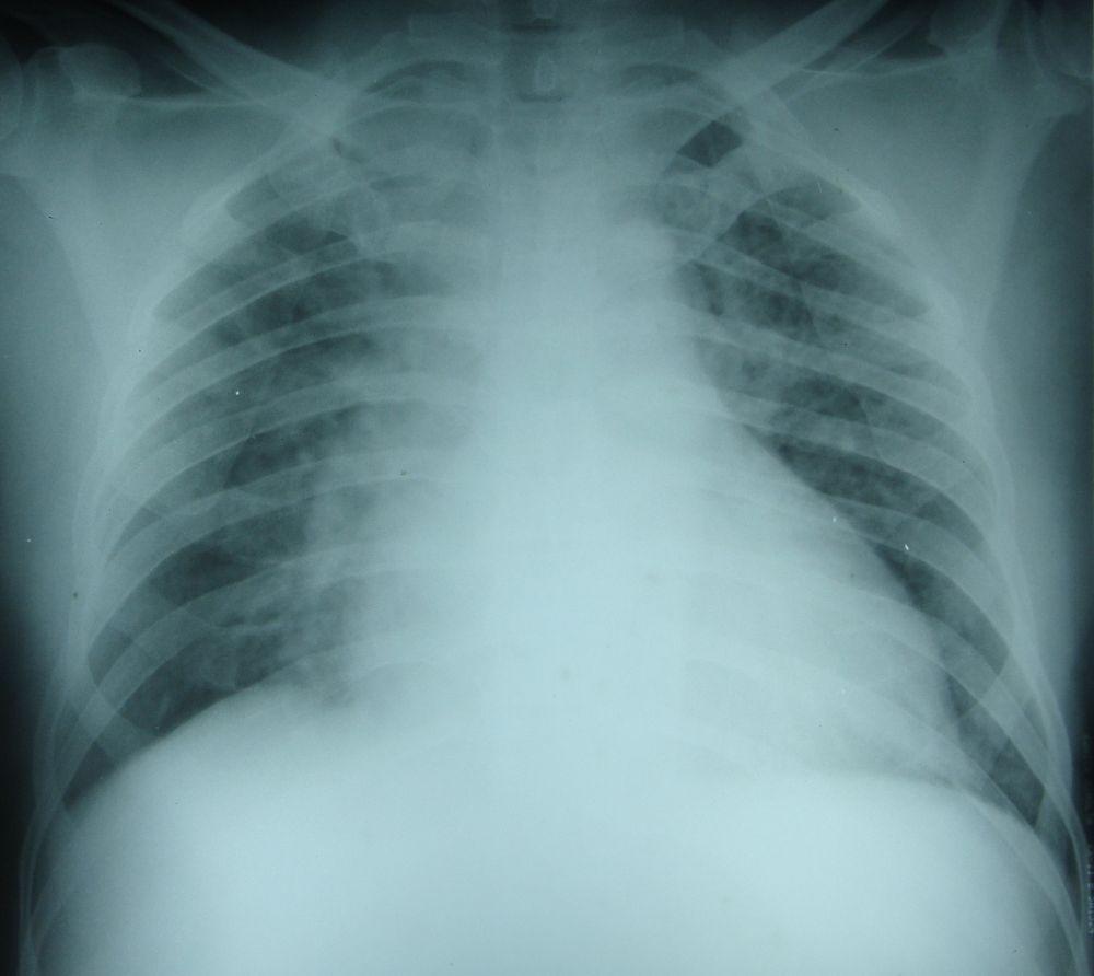 radiografia edema polmonare.jpg