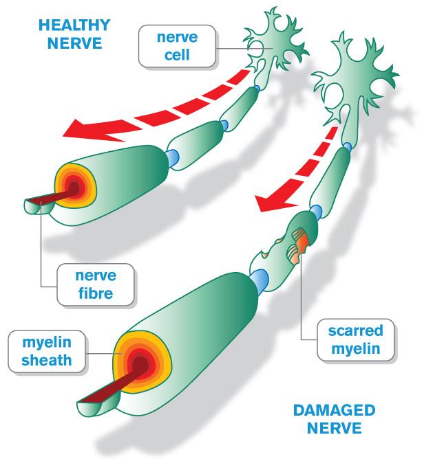 La sclerosi multipla : informazioni e possibili terapie