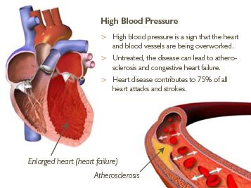 Ipertensione : sintomi, segni, cause, diagnosi e cure