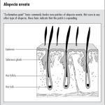 L'alopecia areata: cause e trattamenti