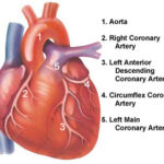 Angina pectoris: sintomi, cause, cure e chirurgia
