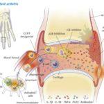 Artrite: cause cure e a chi rivolgersi
