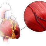Attacco di cuore: cause, sintomi, emergenza e cure