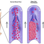 Flebite e Tromboflebite: impariamo a distinguerle