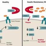 Insulino-resistenza : impariamo a prevenirla