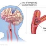 Il TIA: attacco ischemico transitorio
