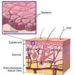 La vitiligine: cause  e sintomi