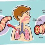 Asma nei bambini : un problema da non sottovalutare