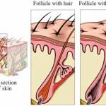 Perdita dei capelli: cause, tipi e rimedi