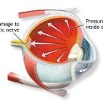 Il glaucoma : informazioni e possibili terapie
