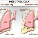 Il mesotelioma : informazioni e cause