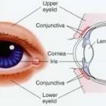 Congiuntiviti: cause,sintomi,complicazioni e cure