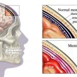 Meningite: sintomi, contagio e cure