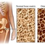 Osteoporosi: prevenzione e terapie