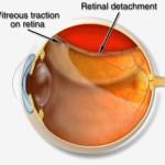 Distacco della retina : cause e segnali