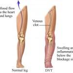 Trombosi venosa profonda: sintomi e complicanze