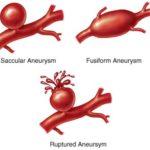 Aneurisma dell'aorta toracica: una emergenza molto grave