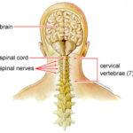 Dolore al collo: ecco le possibili cause