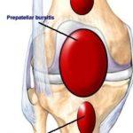 La borsite del ginocchio: ecco di cosa si tratta