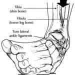 Distorsione della caviglia: esami e rimedi