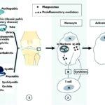 Artrite reattiva: sintomi, segni e possibili cure