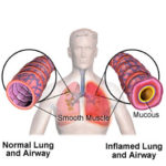 Asma da esercizio fisico: vediamo bene di cosa si tratta