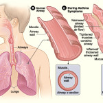 Asma occupazionale: cause e rimedi