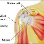 Lesione della cuffia dei rotatori: sintomi e cure