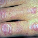 Dermatomiosite: sintomi, cure e terapie sperimentali