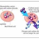 Avvelenamento da monossido di carbonio