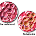 Polmonite: cause e sintomi