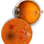 Retinopatia diabetica: segni, sintomi e cure