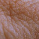 Le rughe: cosa sono e come si eliminano