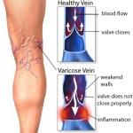 Le vene varicose: trattamenti e sintomi