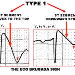 Sindrome di Brugada: segni, sintomi, cause e cure