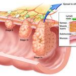 Cancro del colon: segni, sintomi, cause, genetica  e terapie