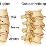 Artrosi: sintomi,cause e cure
