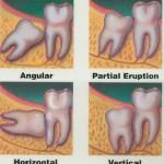 I denti del giudizio: sintomi dolorosi, conservazione ed estrazione