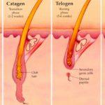 La depilazione laser: tecniche, aspettative e trattamenti