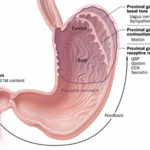 La gastroparesi:sintomi, segni e possibli terapie