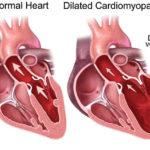 Cardiomiopatia dilatativa: sintomi, complicazioni e terapie