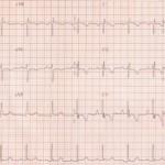 Ipertrofia ventricolare sinistra: sintomi e cure