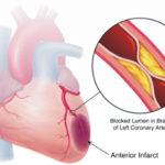 Ischemia miocardica: sintomi, fattori di rischio, cause  e terapie