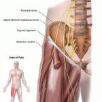 Meralgia parestesica: sintomi, segni, cause, diagnosi e trattamenti