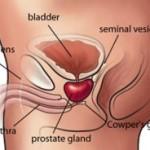 La prostatite:segni, sintomi, cause e cure