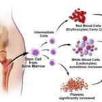 Trombocitemia essenziale: sintomi, cause, complicazioni e cure