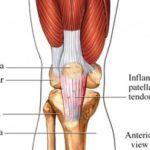 La tendinite rotulea: sintomi, cause, terapie e chirurgia