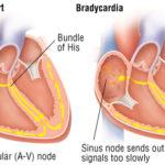 Bradicardia: sintomi, cause, conseguenze, diagnosi e terapie