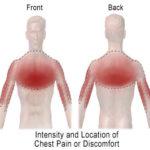 Il dolore toracico : cause, diagnosi e cure