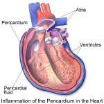 Versamento pericardico: cause, sintomi, complicazioni e terapie